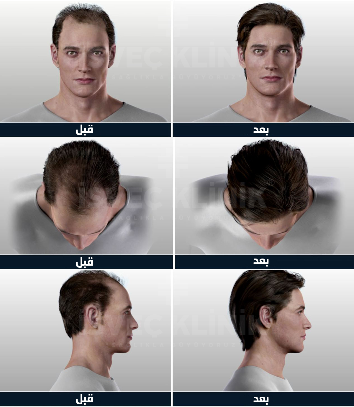 hair transplant after before